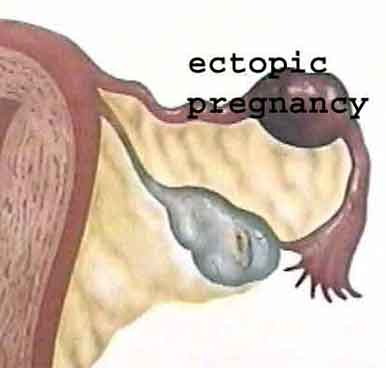 extra uterine gestation